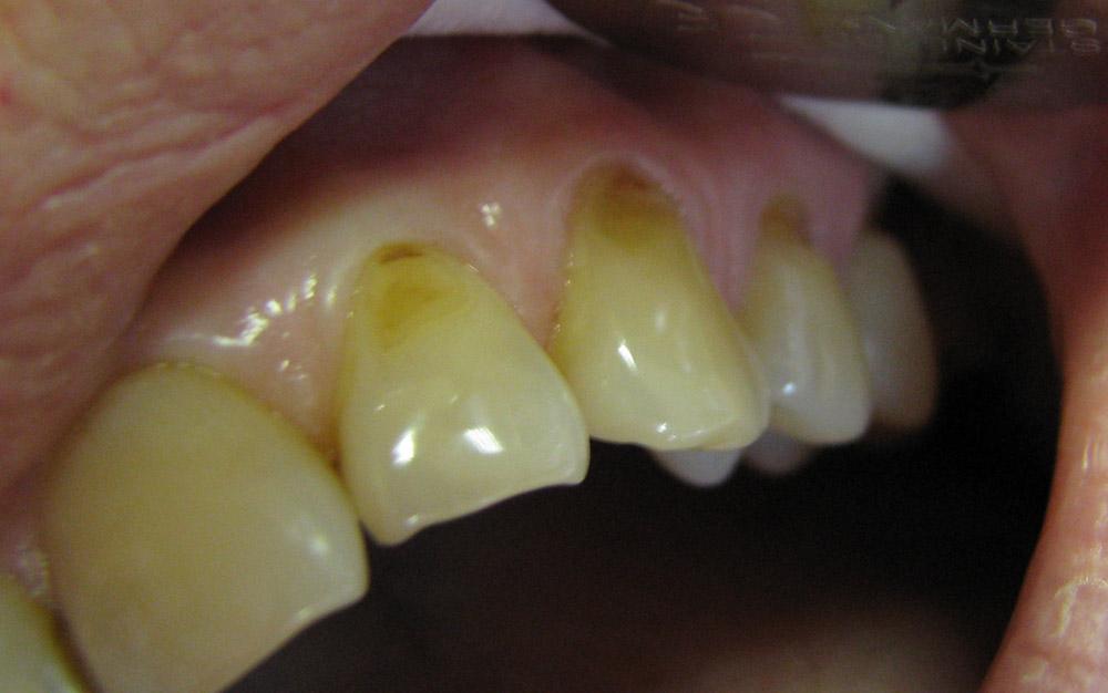 Клиновидные дефекты зубов до лечения.