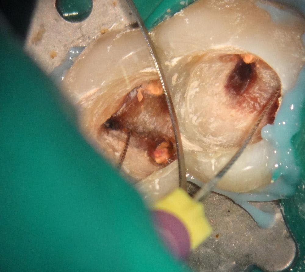 3. Обнаружен дполнительный корневой канал в мезиальном корне.