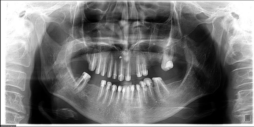 Зубы перелечены и восстановлены на стекловолокне.