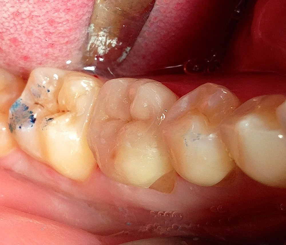 Зезультат. Зуб 46. Вкладка зафиксирована.