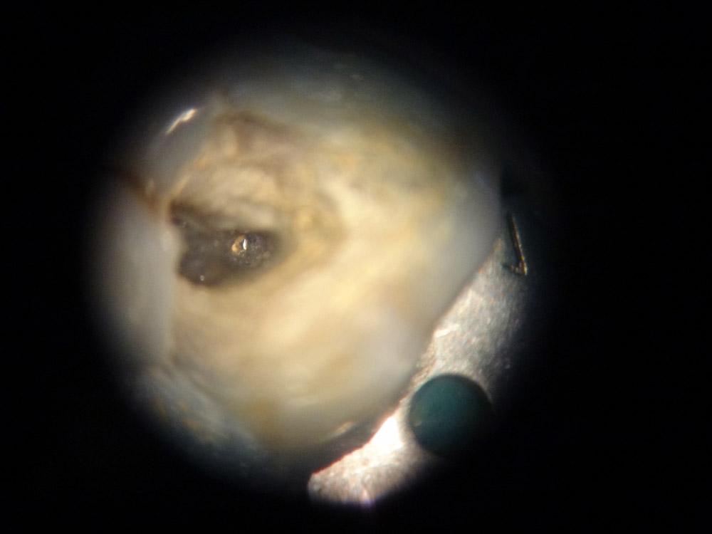 6. Под микроскопом обнаружен фрагмент сломанного инструмента в канале.