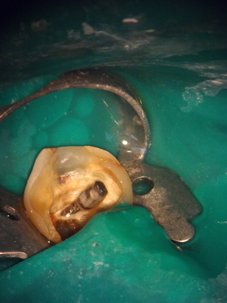 1. Зуб ранее восстановлен на анкерном штифте.