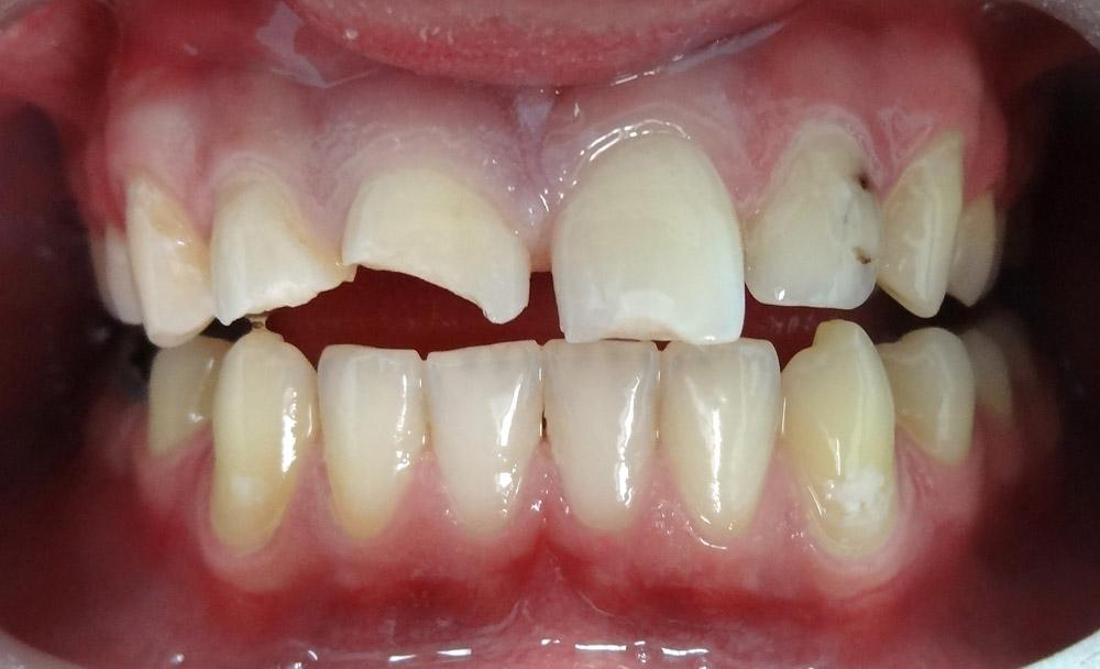 1. Перелом коронковой части зубов 11,12.