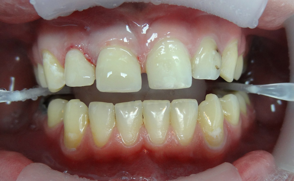 2. Прямая композитная реставрация зубов.
